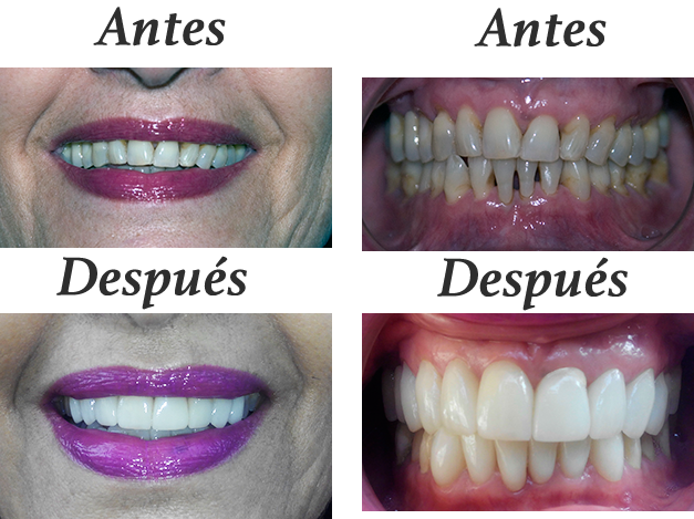 carillas-antes-despues